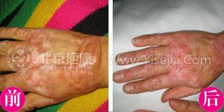 简女士烧伤疤痕治疗病例