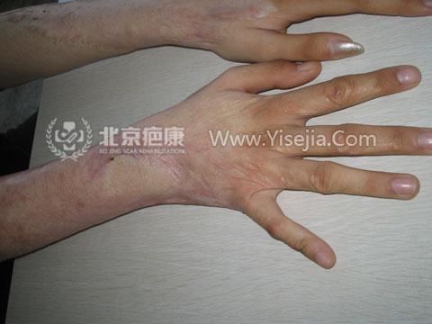 烧伤疤痕治疗