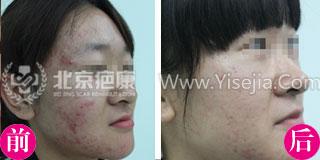 面部青春痘治疗案例